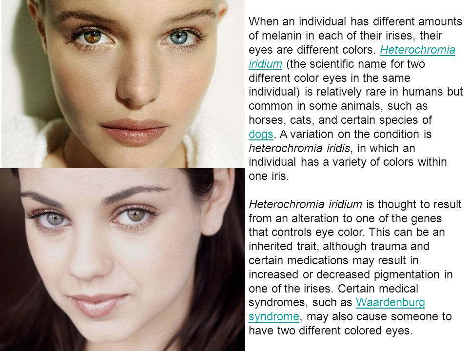 When an individual has different amounts of melanin in each of their irises, their eyes are different colors. Heterochromia iridium (the scientific name for two different color eyes in the same individual) is relatively rare in humans but common in some animals, such as horses, cats, and certain species of dogs. A variation on the condition is heterochromia iridis, in which an individual has a variety of colors within one iris.