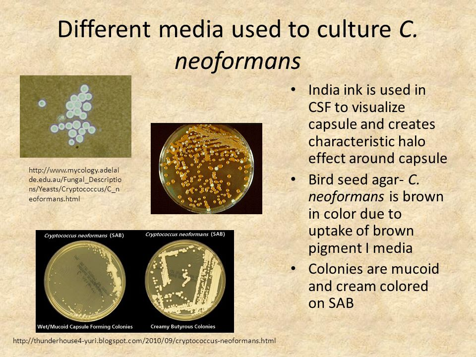 Different media used to culture C. neoformans