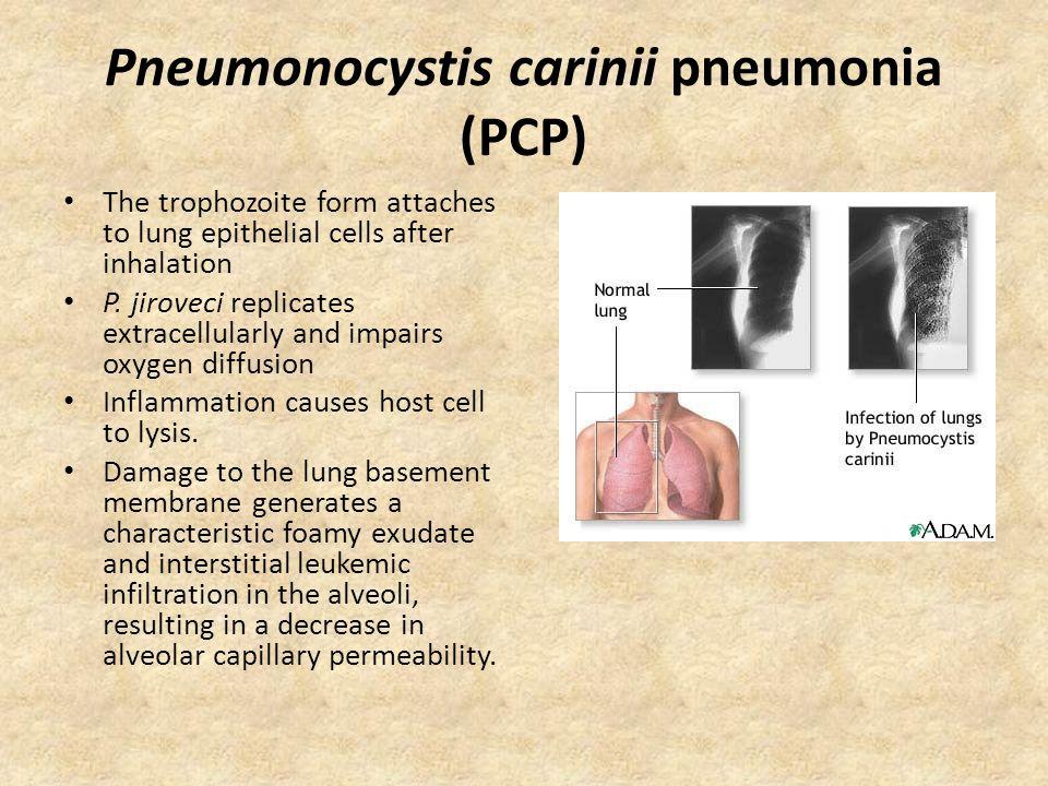 Pneumonocystis carinii pneumonia (PCP)