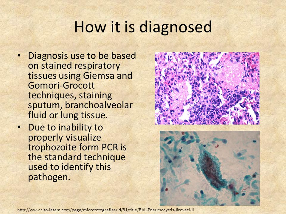 How it is diagnosed