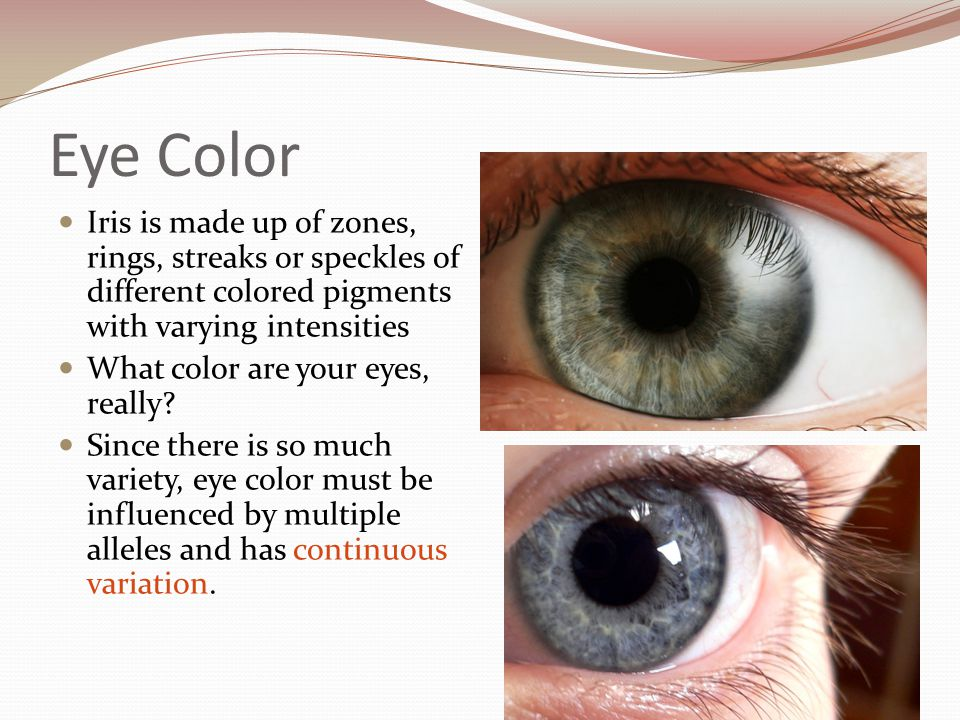 Eye Color Iris is made up of zones, rings, streaks or speckles of different colored pigments with varying intensities.