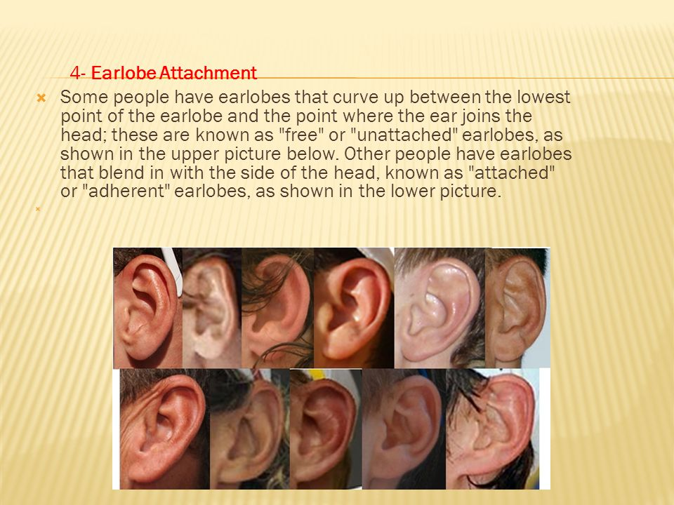 4- Earlobe Attachment
