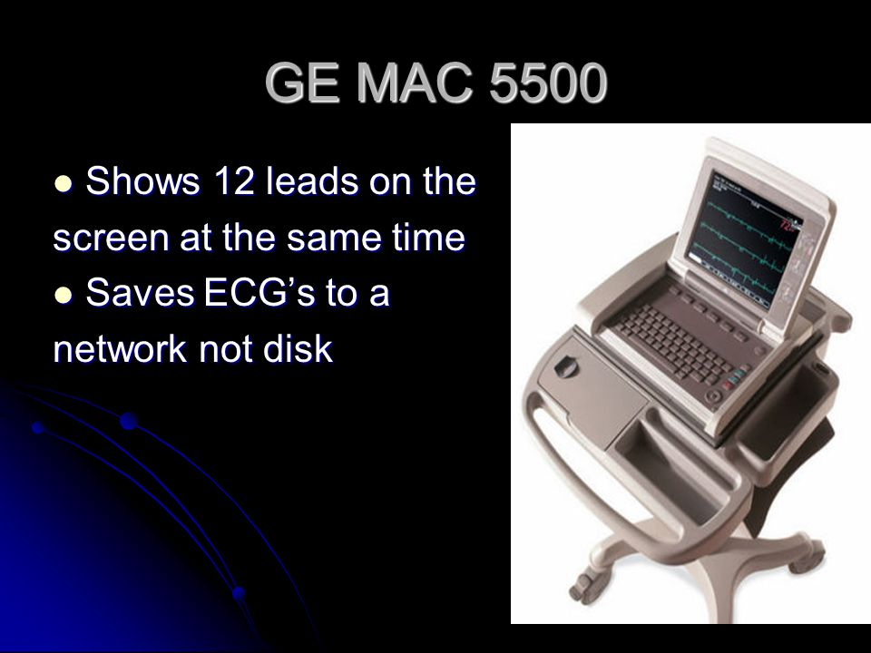 GE MAC 5500 Shows 12 leads on the screen at the same time