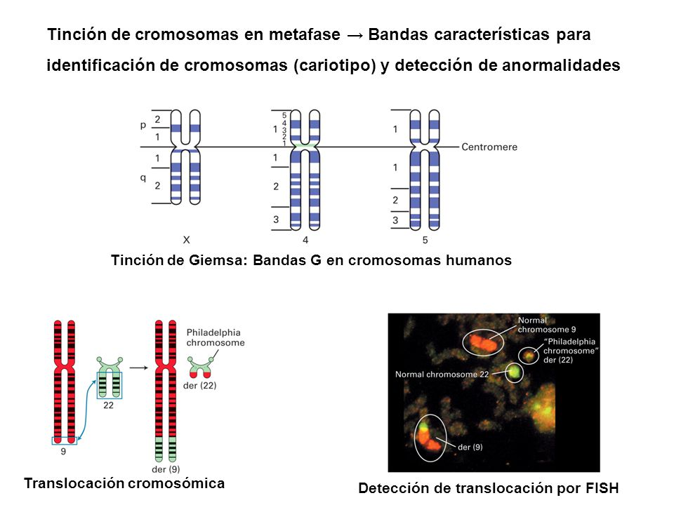 Tinción de cromosomas en metafase → Bandas características para