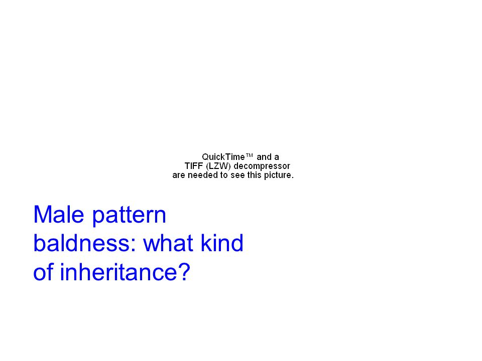 Male pattern baldness: what kind of inheritance