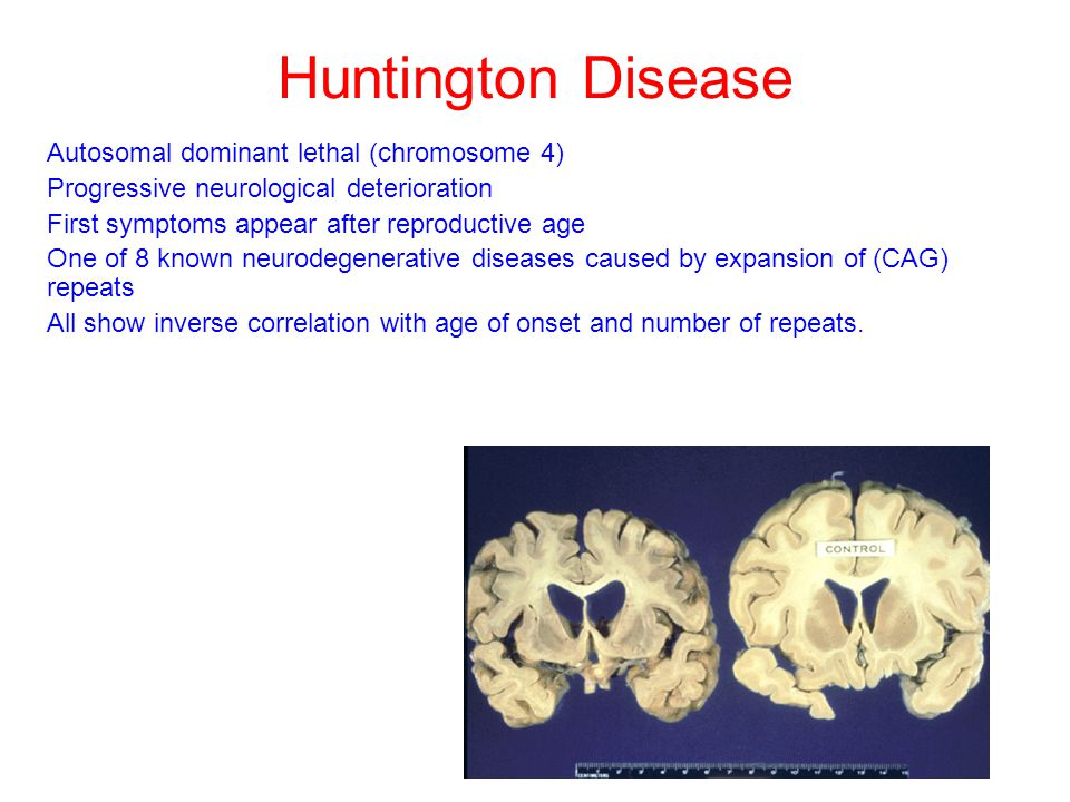 Huntington Disease Autosomal dominant lethal (chromosome 4)