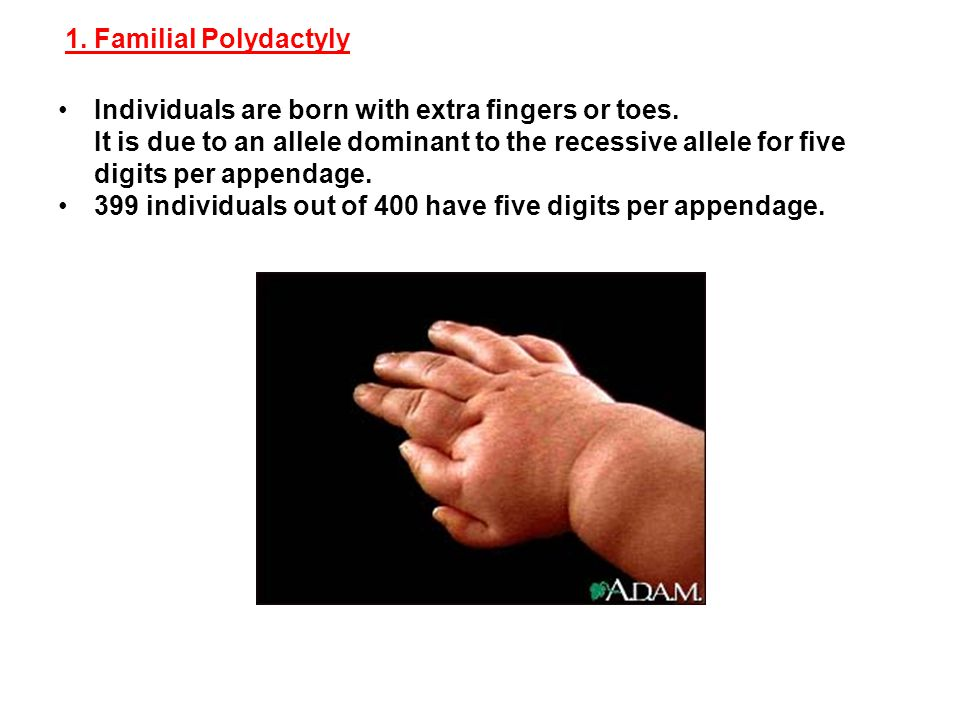 1. Familial Polydactyly