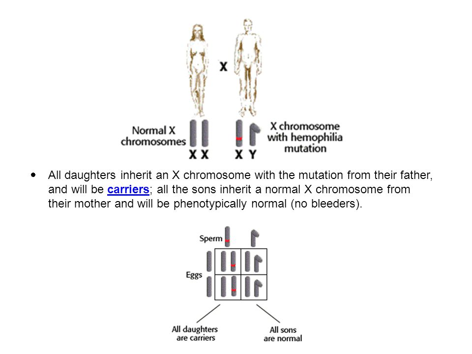 All daughters inherit an X chromosome with the mutation from their father, and will be carriers; all the sons inherit a normal X chromosome from their mother and will be phenotypically normal (no bleeders).