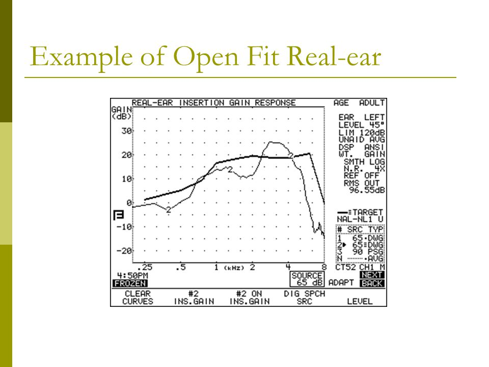Example of Open Fit Real-ear