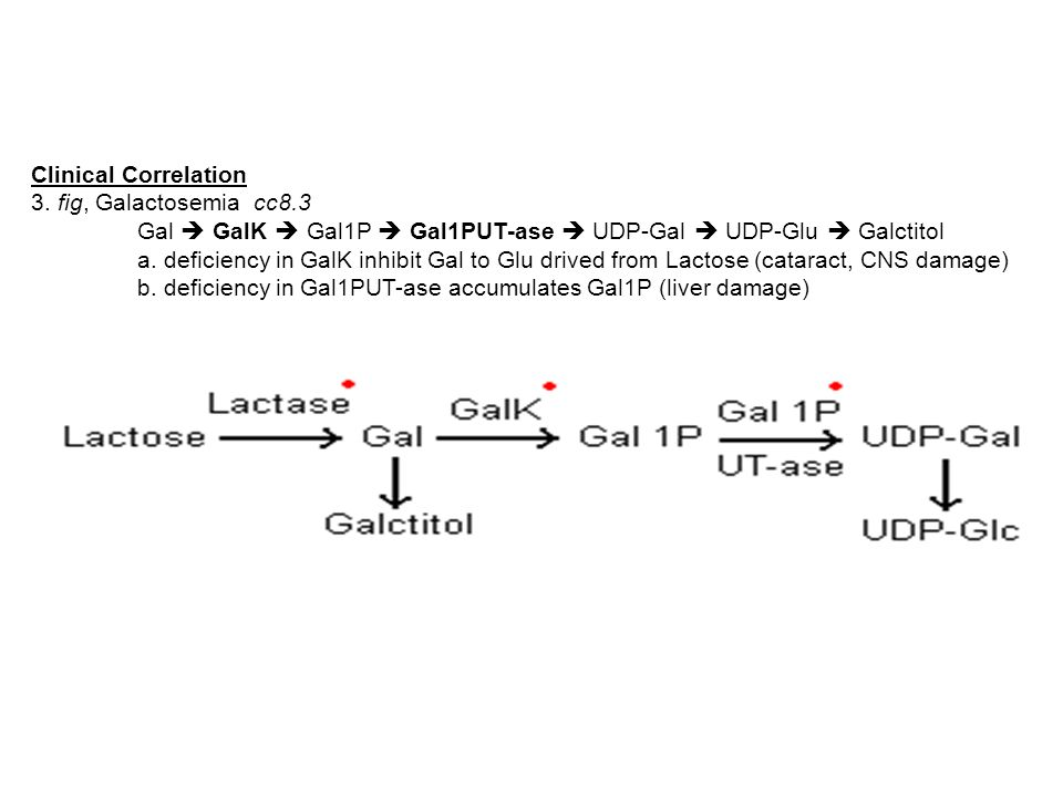 Clinical Correlation 3. fig, Galactosemia cc8.3. Gal  GalK  Gal1P  Gal1PUT-ase  UDP-Gal  UDP-Glu  Galctitol.