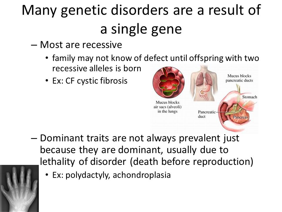 Many genetic disorders are a result of a single gene
