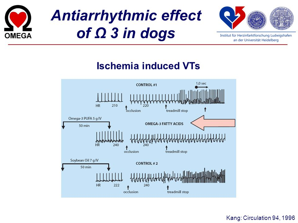Antiarrhythmic effect of Ω 3 in dogs