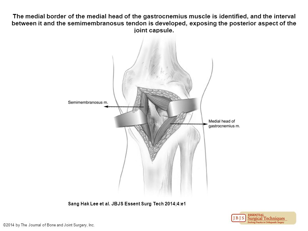 The medial border of the medial head of the gastrocnemius muscle is identified, and the interval between it and the semimembranosus tendon is developed, exposing the posterior aspect of the joint capsule.