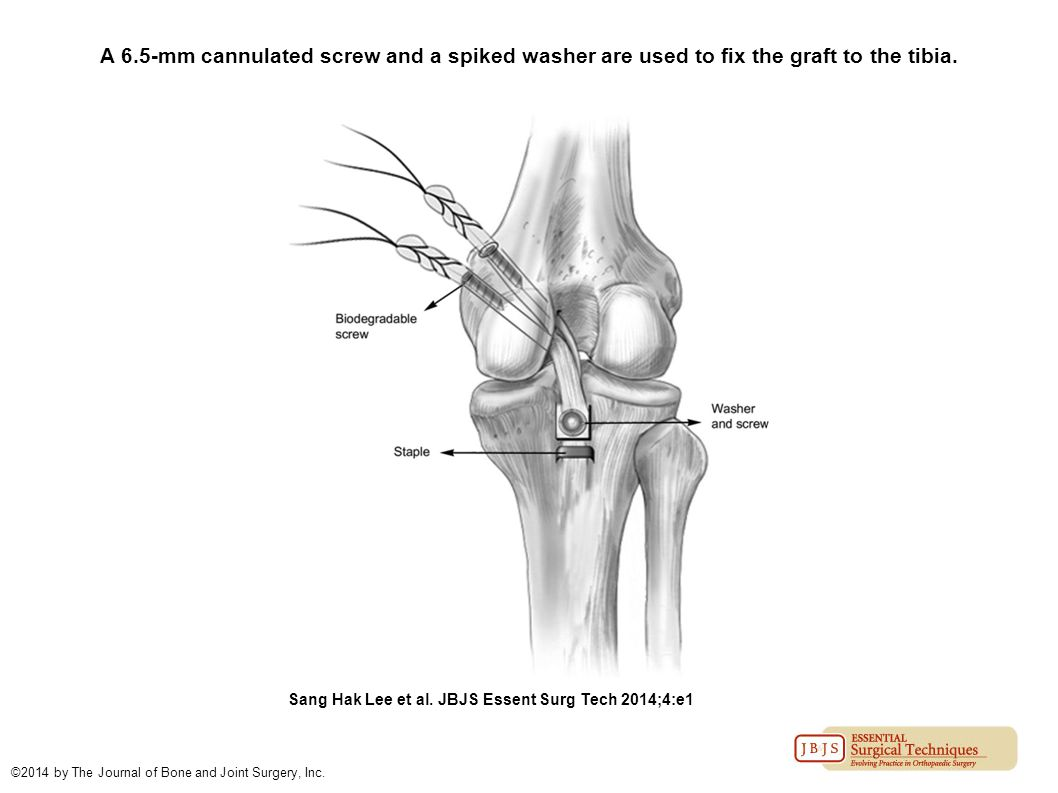 A 6.5-mm cannulated screw and a spiked washer are used to fix the graft to the tibia.