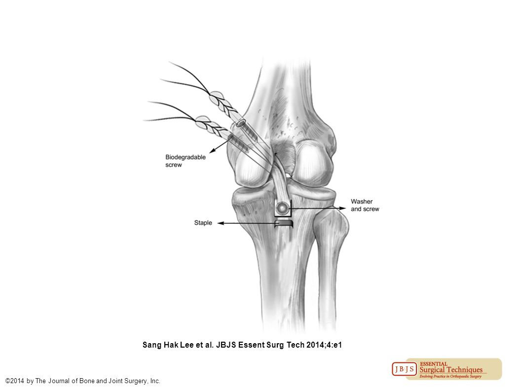 Sang Hak Lee et al. JBJS Essent Surg Tech 2014;4:e1