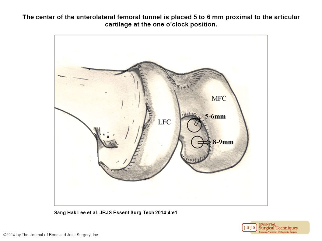 The center of the anterolateral femoral tunnel is placed 5 to 6 mm proximal to the articular cartilage at the one o'clock position.