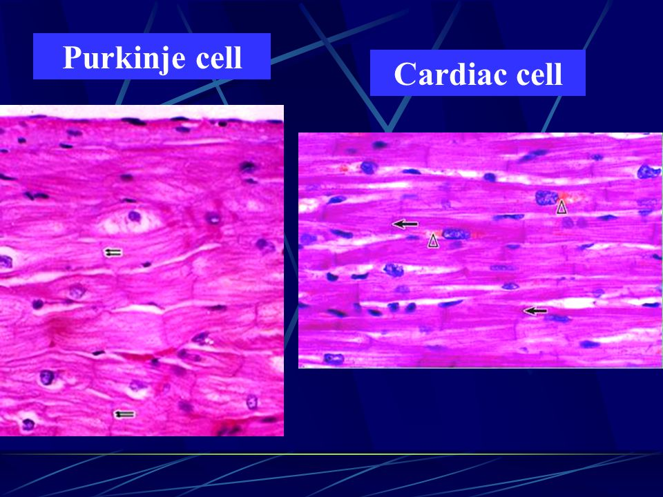 Purkinje cell Cardiac cell