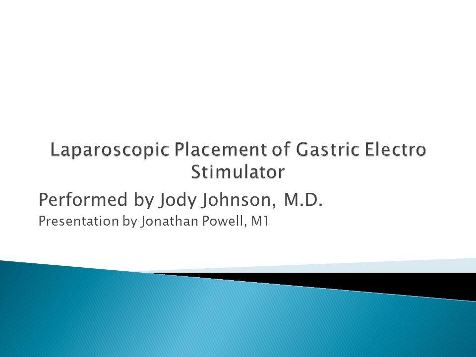 Laparoscopic Placement of Gastric Electro Stimulator