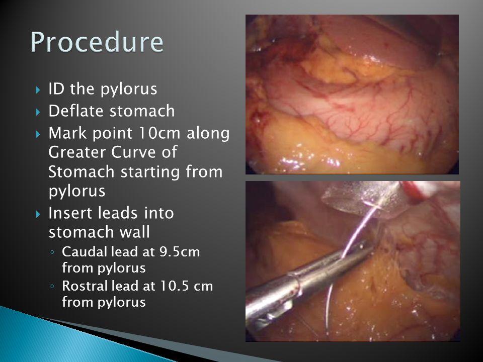 Procedure ID the pylorus Deflate stomach