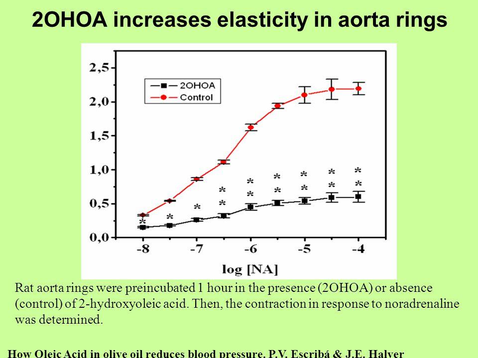 2OHOA increases elasticity in aorta rings