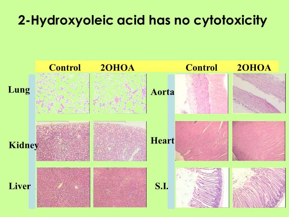 2-Hydroxyoleic acid has no cytotoxicity