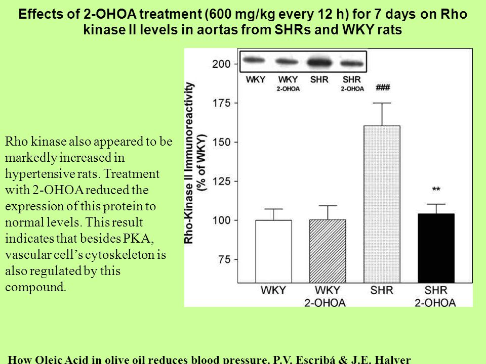 Effects of 2-OHOA treatment (600 mg/kg every 12 h) for 7 days on Rho kinase II levels in aortas from SHRs and WKY rats