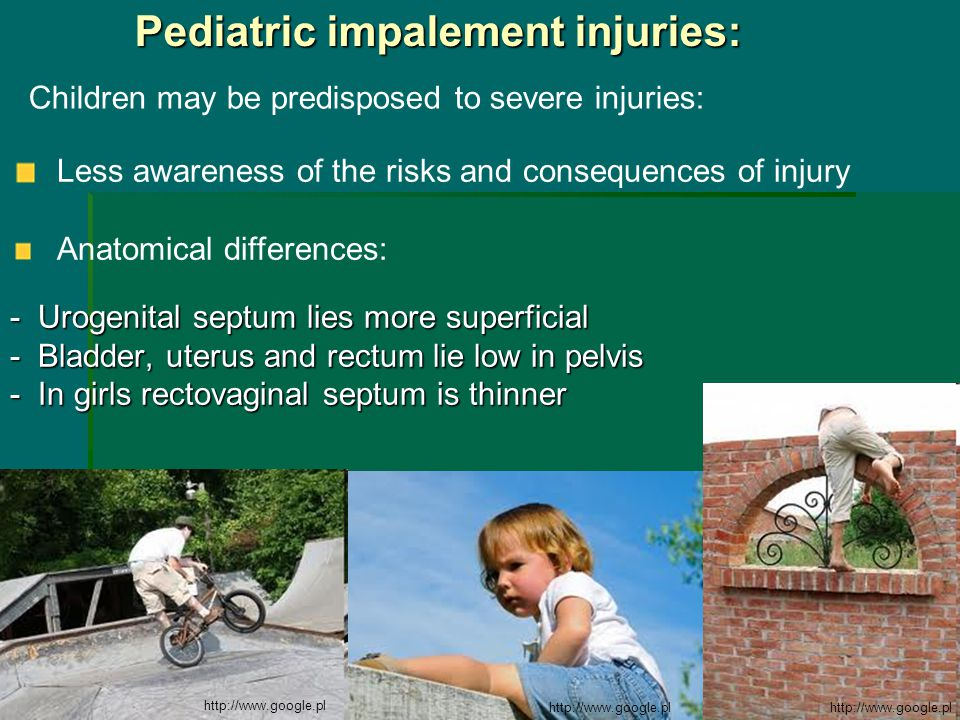 Pediatric impalement injuries: