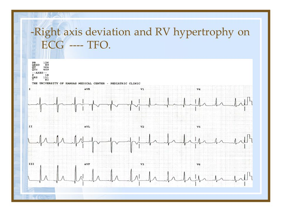 -Right axis deviation and RV hypertrophy on ECG ---- TFO.