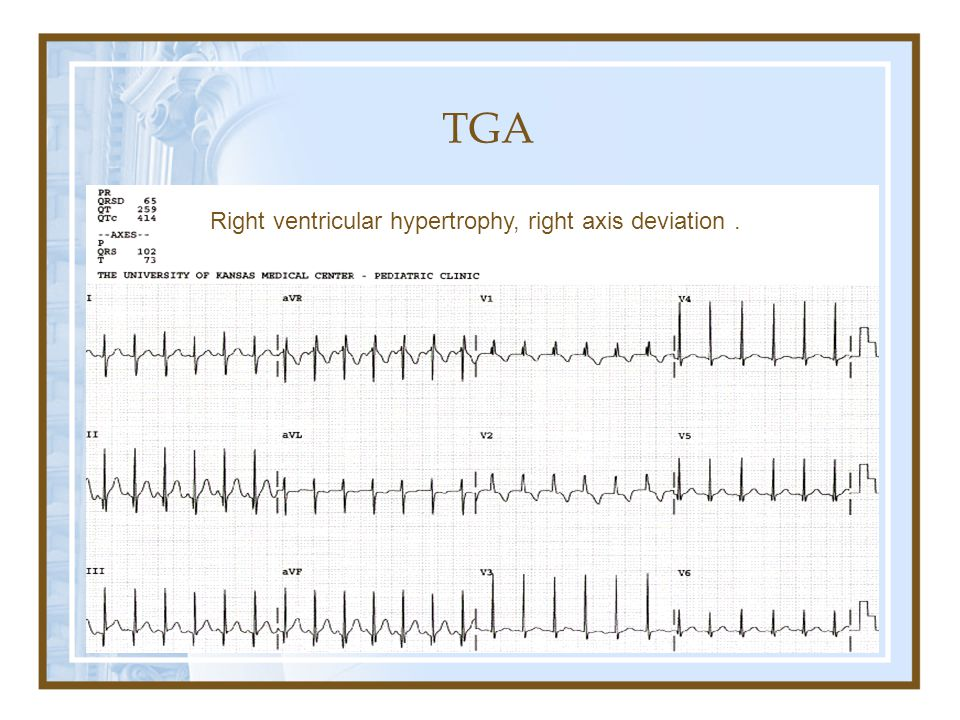 TGA Right ventricular hypertrophy, right axis deviation .