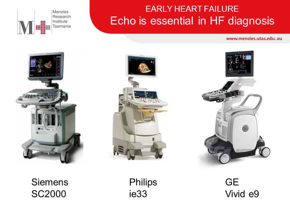 EARLY HEART FAILURE Echo is essential in HF diagnosis