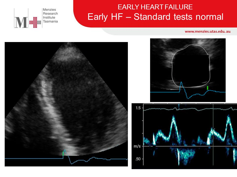 EARLY HEART FAILURE Early HF – Standard tests normal