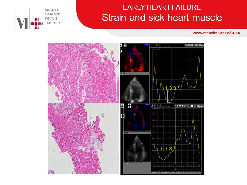 EARLY HEART FAILURE Strain and sick heart muscle