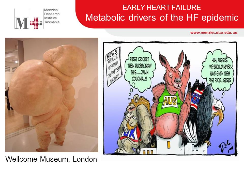 EARLY HEART FAILURE Metabolic drivers of the HF epidemic
