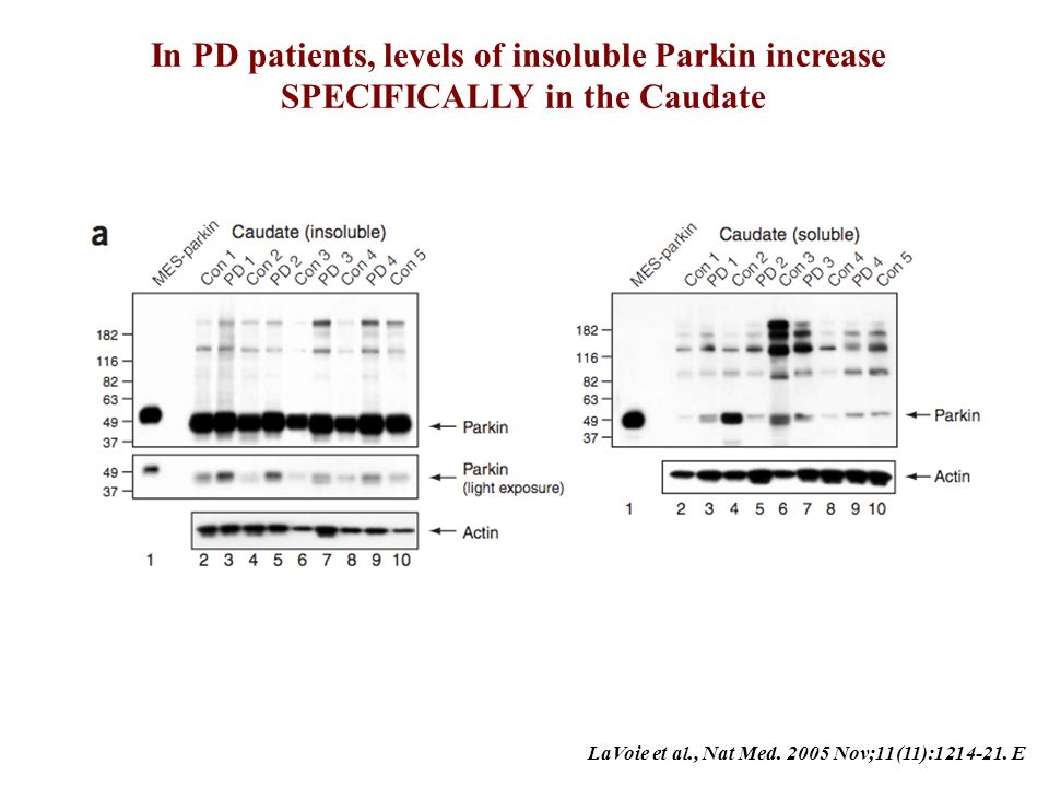 In PD patients, levels of insoluble Parkin increase