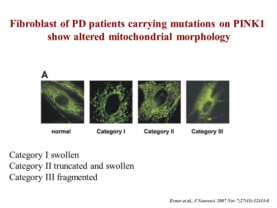 Fibroblast of PD patients carrying mutations on PINK1