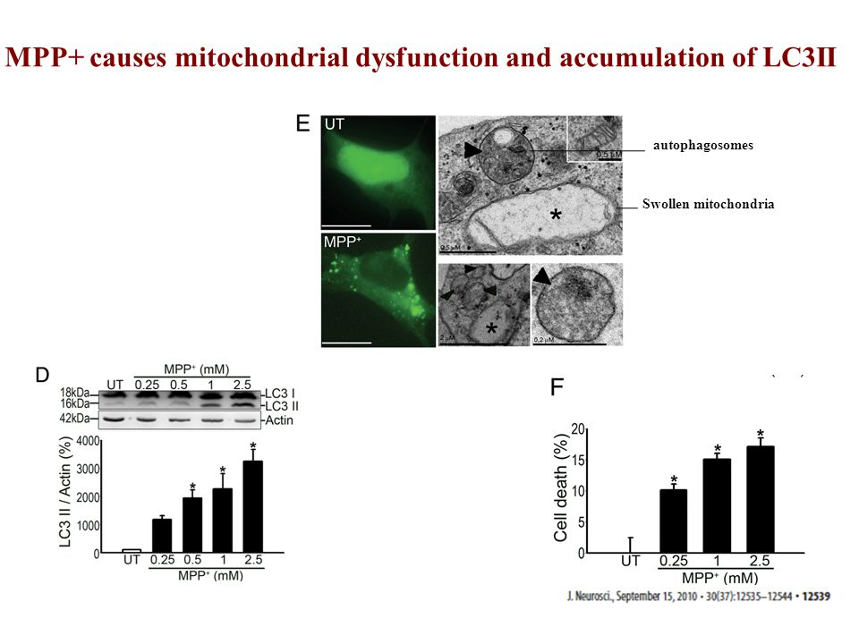 MPP+ causes mitochondrial dysfunction and accumulation of LC3II