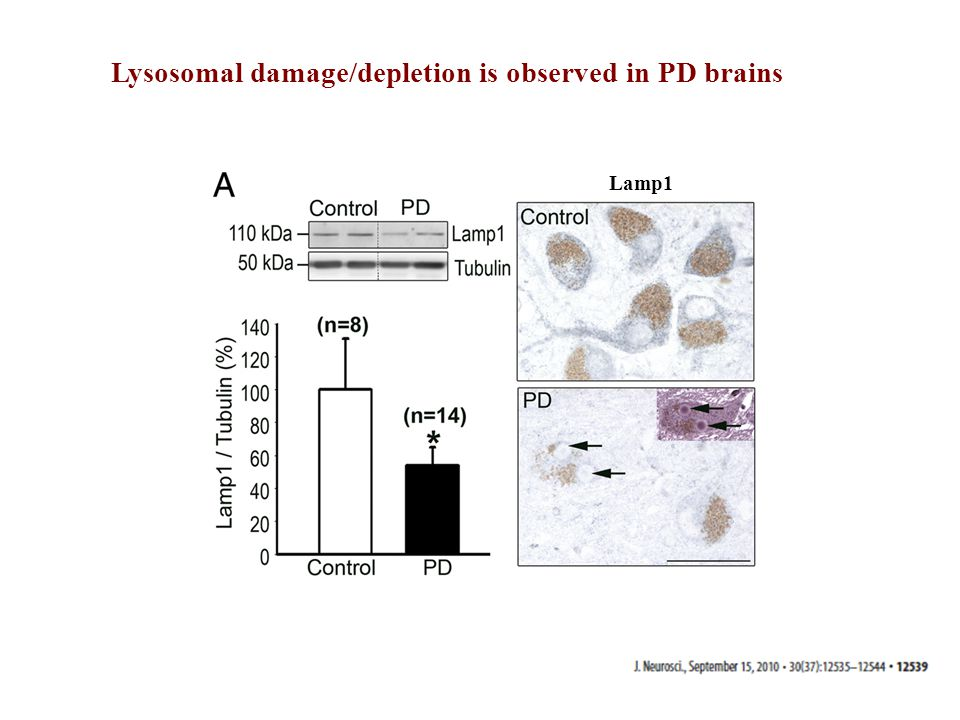 Lysosomal damage/depletion is observed in PD brains