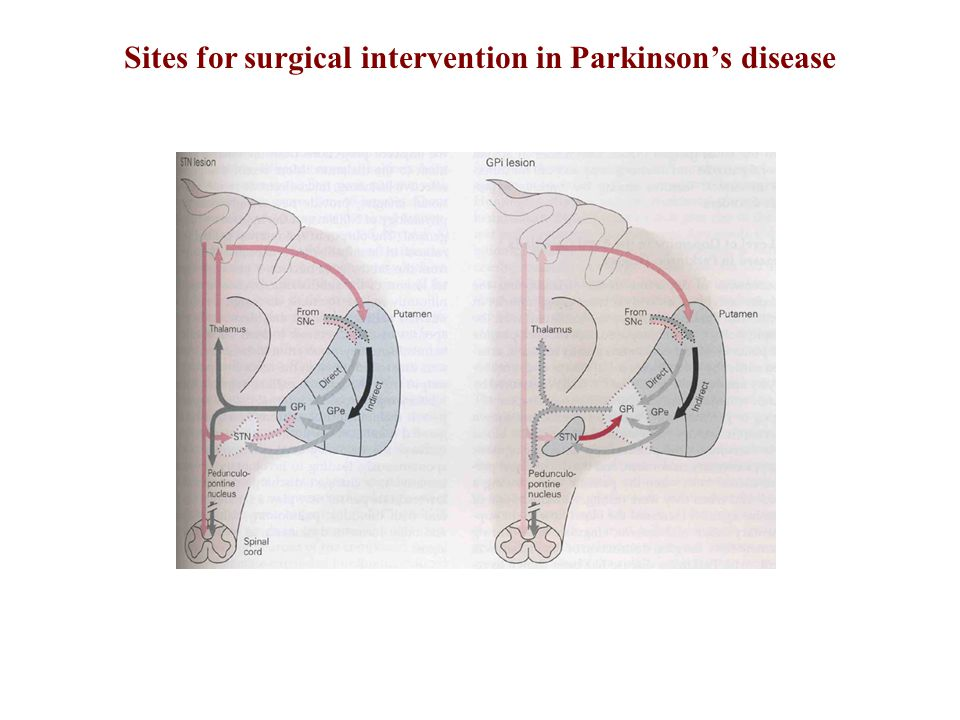 Sites for surgical intervention in Parkinson's disease