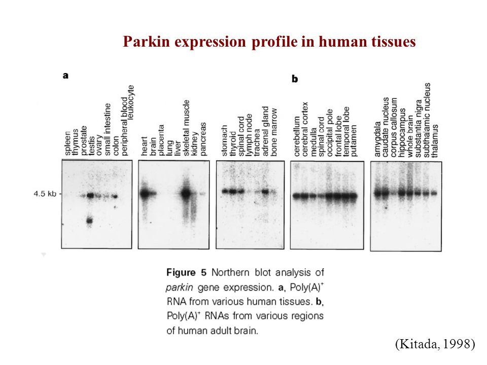 Parkin expression profile in human tissues