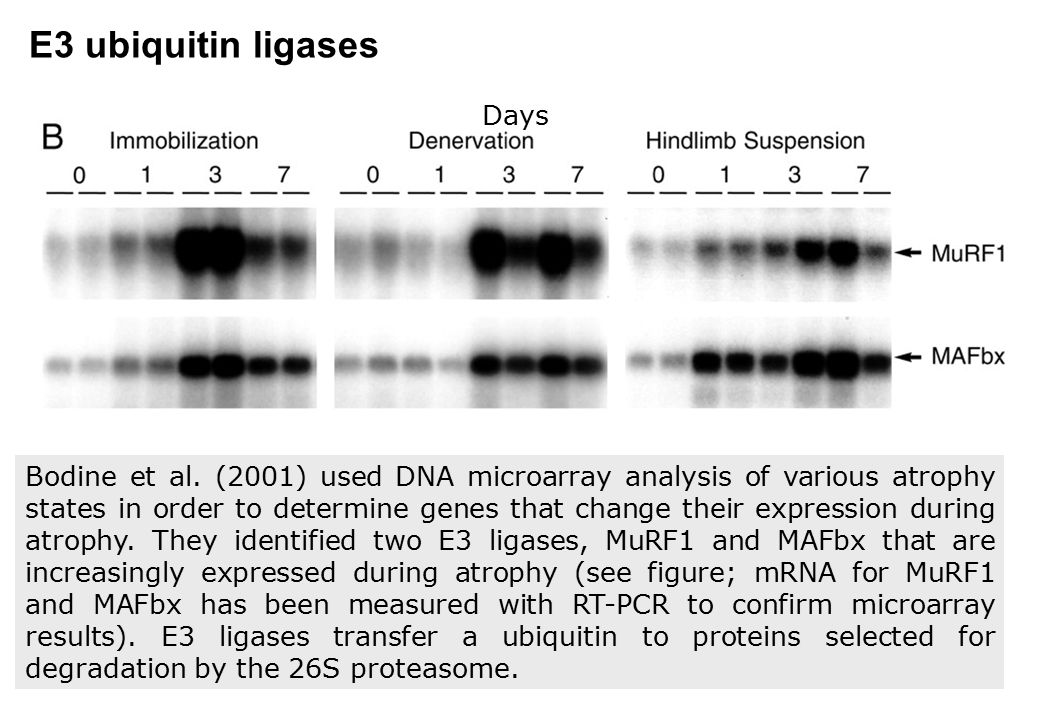 E3 ubiquitin ligases Days