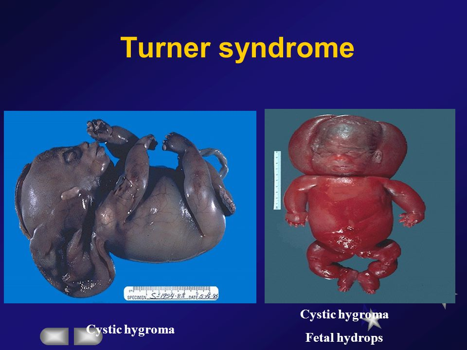Turner syndrome Cystic hygroma Fetal hydrops Cystic hygroma