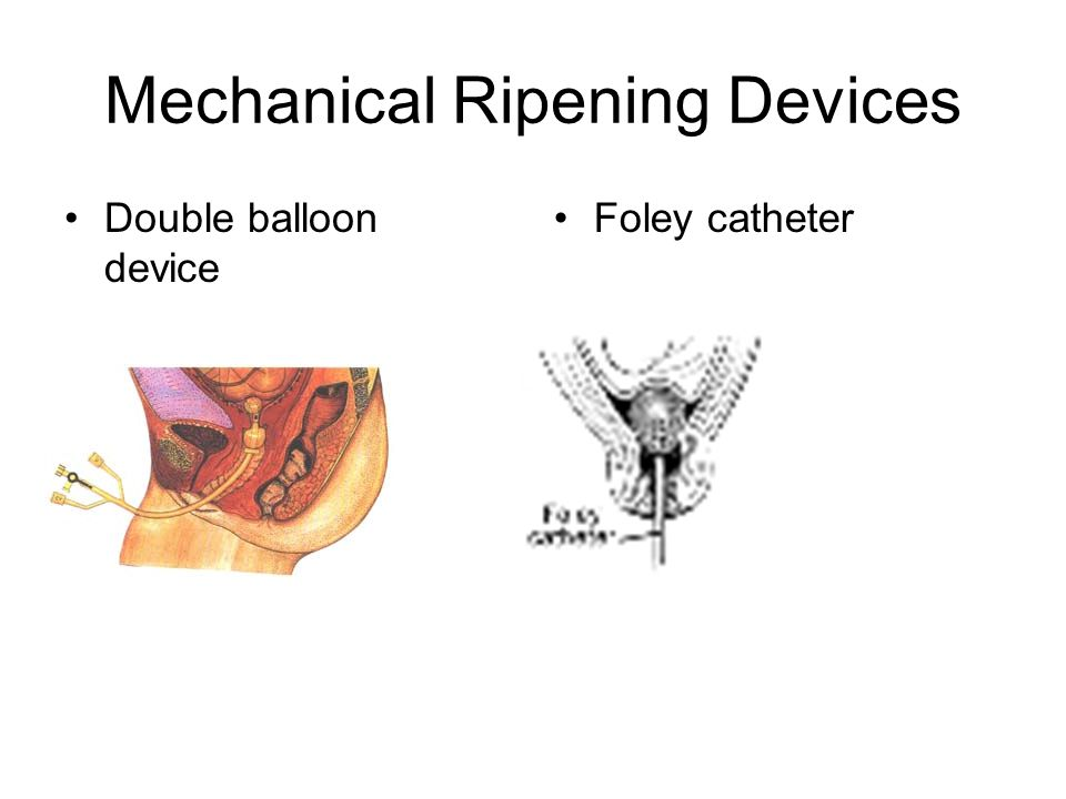 Mechanical Ripening Devices