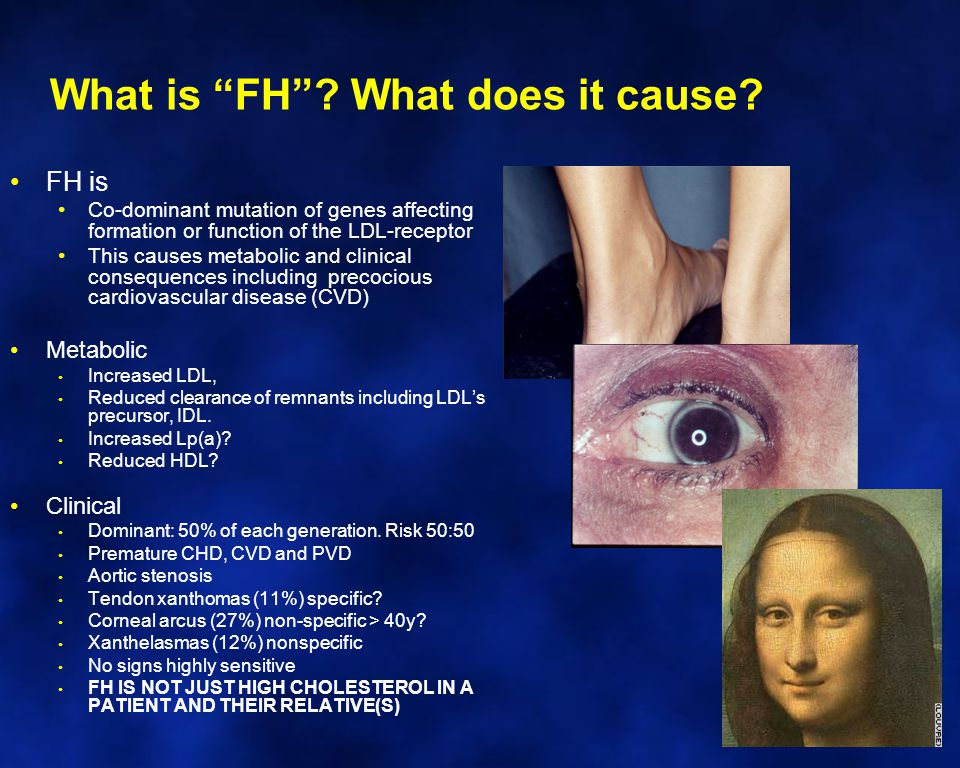 What is FH What does it cause