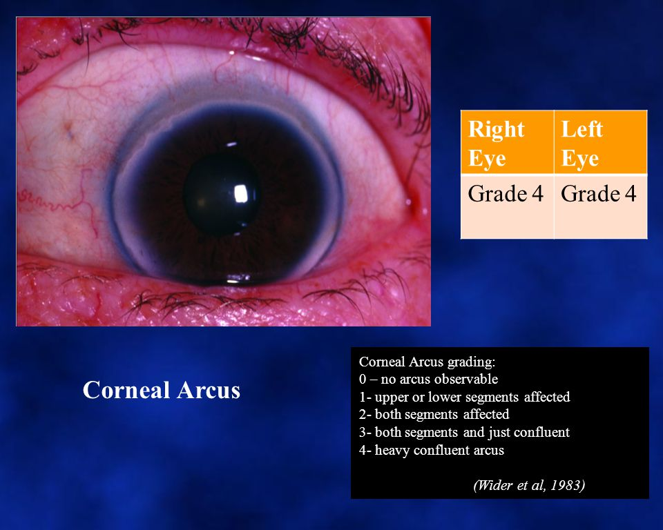 Corneal Arcus Right Eye Left Eye Grade 4 Corneal Arcus grading: