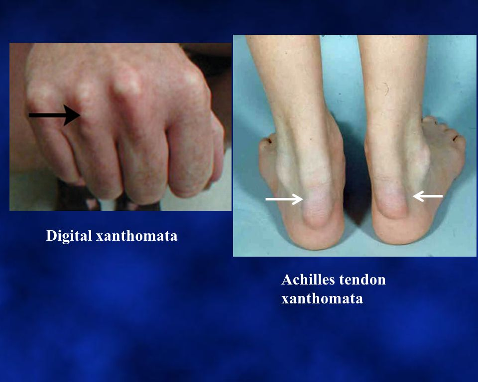 Digital xanthomata Achilles tendon xanthomata