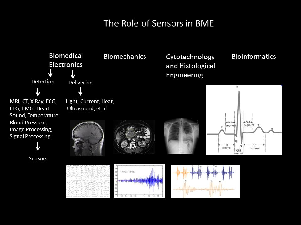 The Role of Sensors in BME