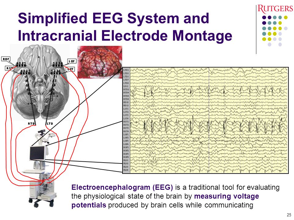 Simplified EEG System and Intracranial Electrode Montage