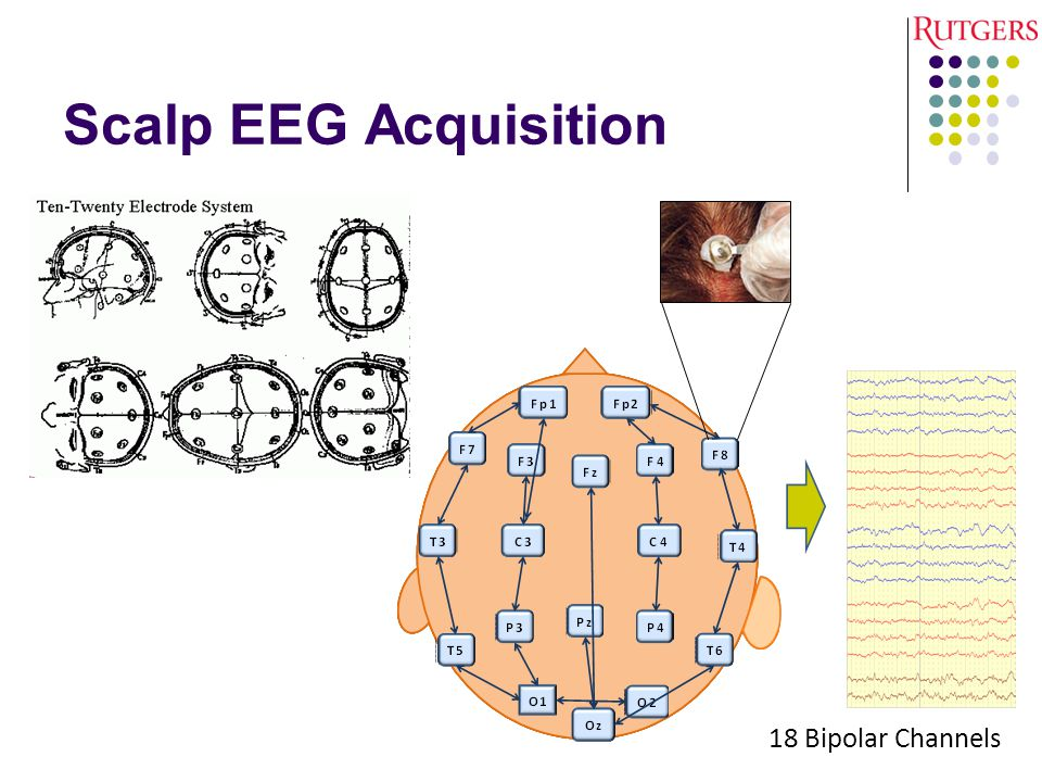 Scalp EEG Acquisition 18 Bipolar Channels