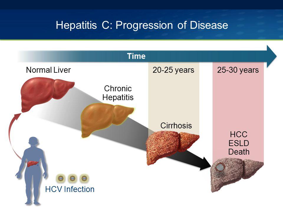 Hepatitis C: Progression of Disease