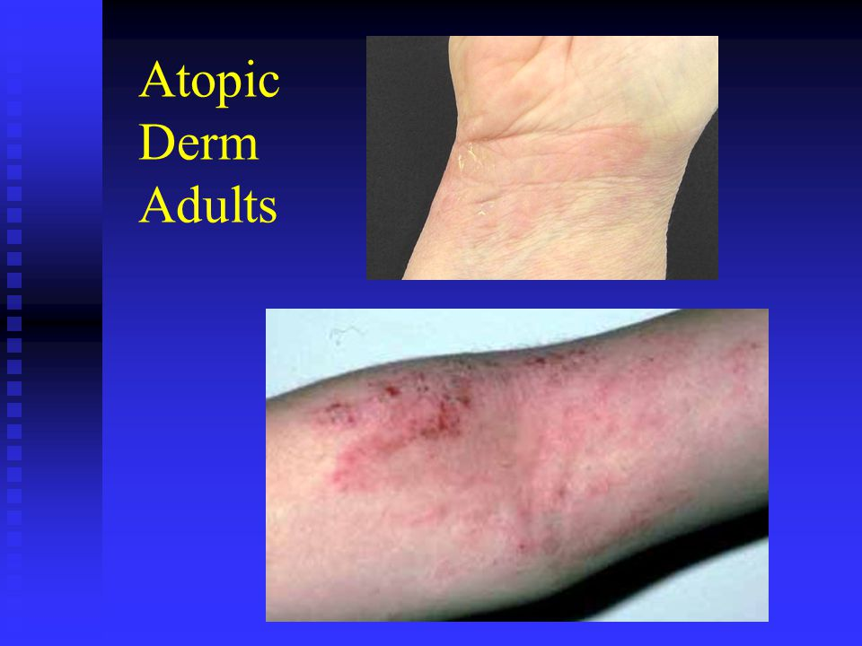Atopic Derm Adults